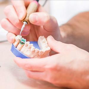 Выполняются все виды протезирования зубов в Чугуеве